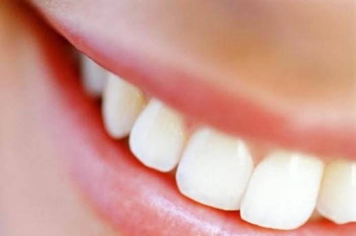 отбеливанием зубов в Новороссийске